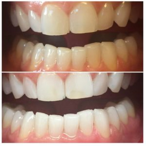 Advantages of Philips Zoom WhiteSpeed at Falcon Dental Care